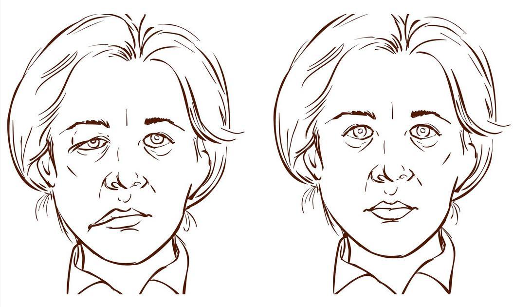 Porażenie twarzy (niedowład twarzy) w chorobie neurologicznej