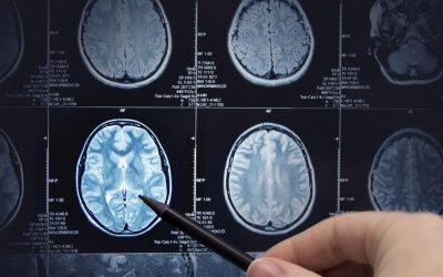 Padaczka (epilepsa) – objawy, przyczyny, diagnostyka, leczenie