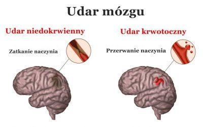 Udar mózgu (krwotoczny, niedokrwienny) – objawy, przyczyny, leczenie, rehabilitacja