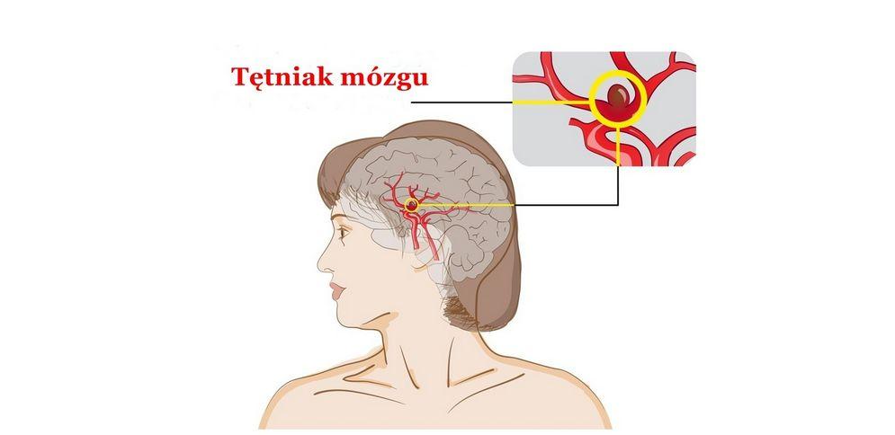 Tętniak mózgu – objawy, przyczyny, badania, leczenie