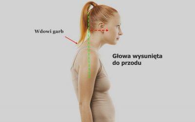 Wdowi garb – leczenie, objawy, ćwiczenia, rehabilitacja