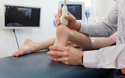 Zerwanie ścięgna (zerwane śćięgno) Achillesa – objawy, leczenie, operacja, rehabilitacja