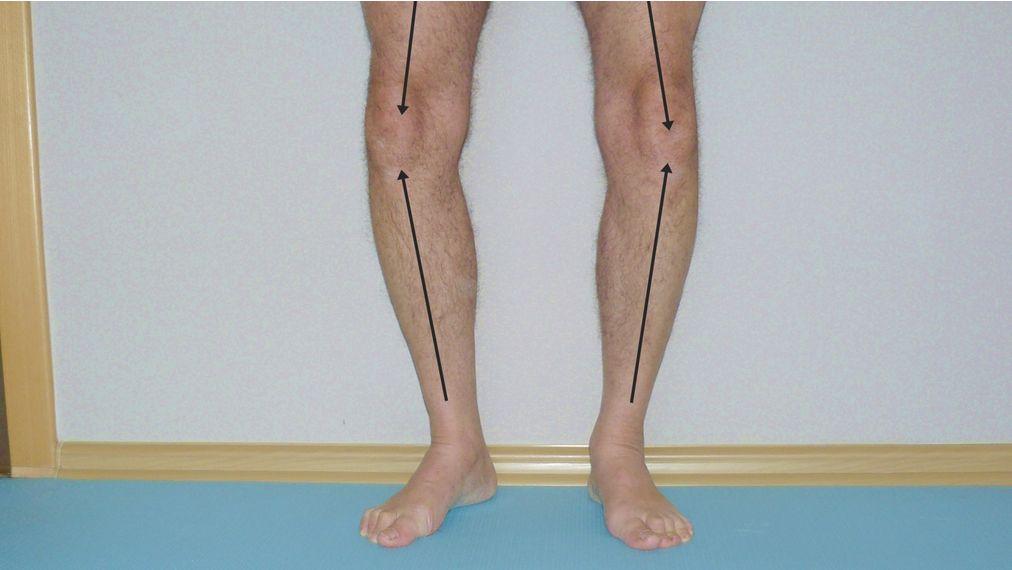 Szpotawe kolana (Szpotawość stawów kolanowych) – objawy, przyczyny, leczenie, rehabilitacja
