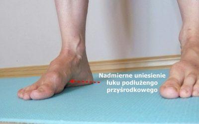 Szpotawość stóp (szpotawa stopa) – objawy, przyczyny, leczenie, rehabilitacja