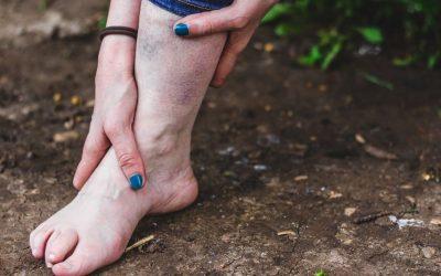 Zwyrodnienie stawu skokowego – objawy, przyczyny, leczenie, rehabilitacja