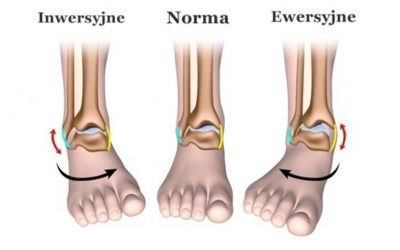 Skręcenie stawu skokowego (skręcenie kostki, zwichnięcie kostki) – objawy, stopnie, leczenie, rehabilitacja
