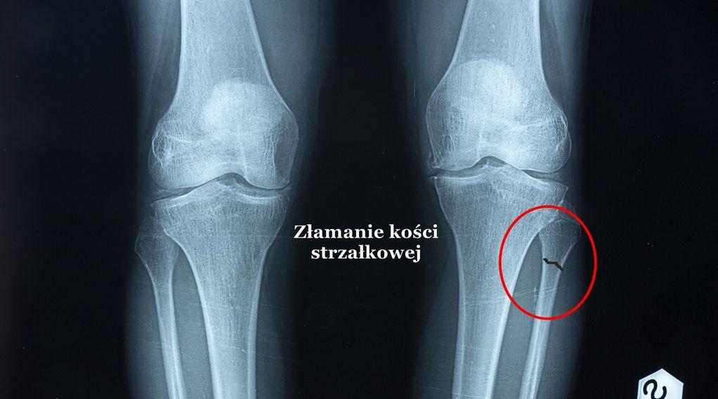 Złamanie kości strzałkowej – objawy, leczenie, operacja, rehabilitacja