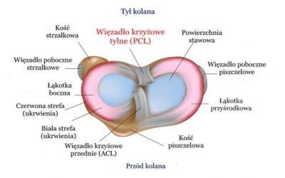 Zerwanie (uraz) więzadła krzyżowego tylnego (PCL) – objawy, rekonstrukcja, leczenie, rehabilitacja