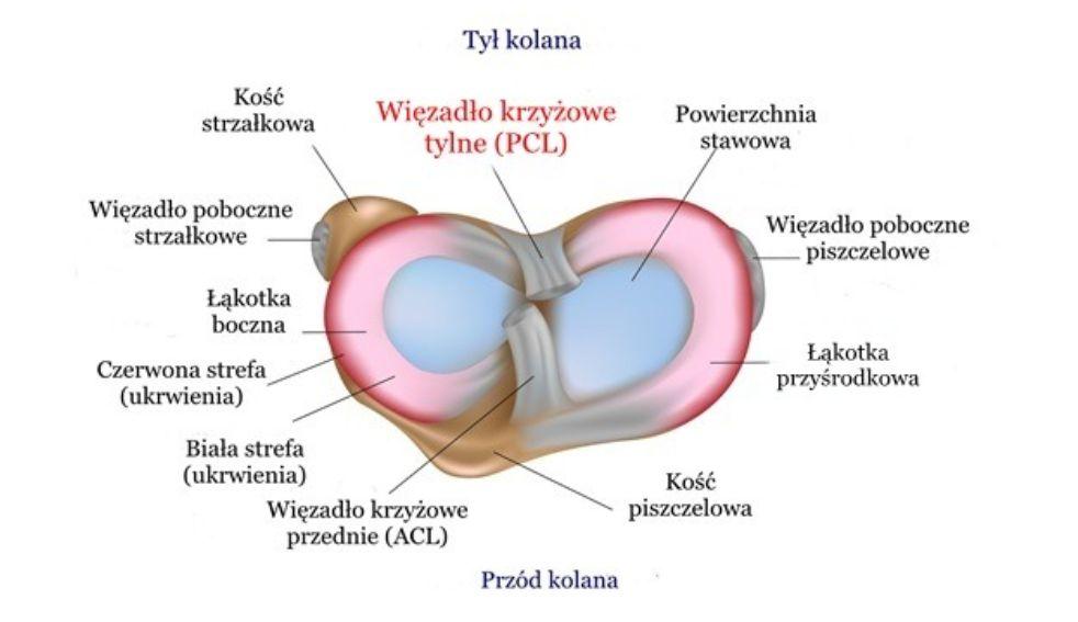 Zerwanie (uraz) więzadła krzyżowego tylniego (PCL) – objawy, rekonstrukcja, leczenie, rehabilitacja