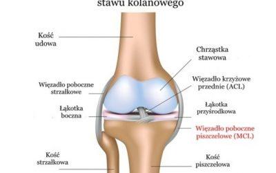 Uszkodzenie (naciągnięcie, naderwanie, zerwanie) więzadła pobocznego kolana (piszczelowego, MCL) – objawy, leczenie, rehabilitacja