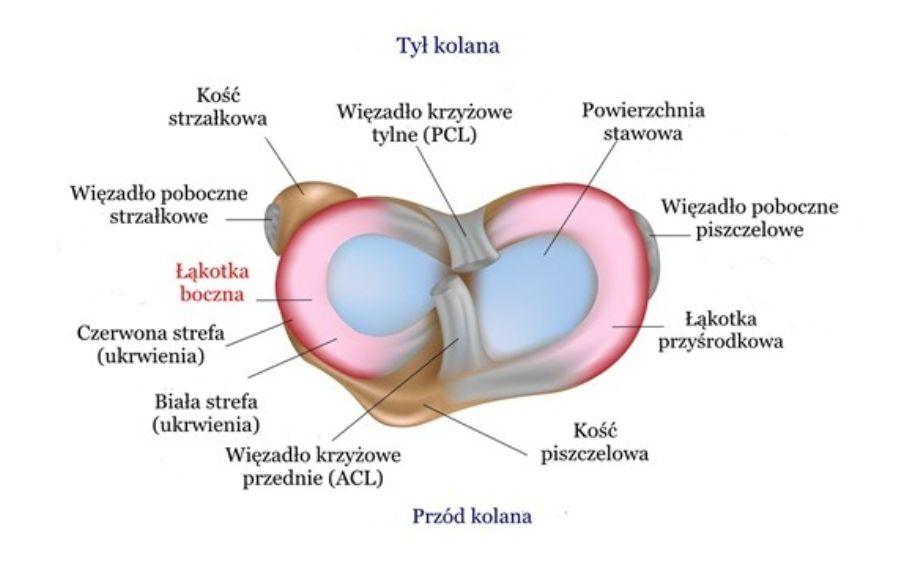 Uszkodzenie (uraz, pęknięcie) łąkotki bocznej – objawy, operacja, leczenie, rehabilitacja