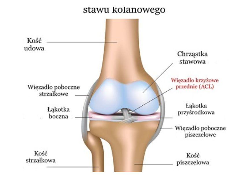 Zerwanie (uraz) więzadła krzyżowego przedniego (ACL) – objawy, rekonstrukcja, leczenie, rehabilitacja