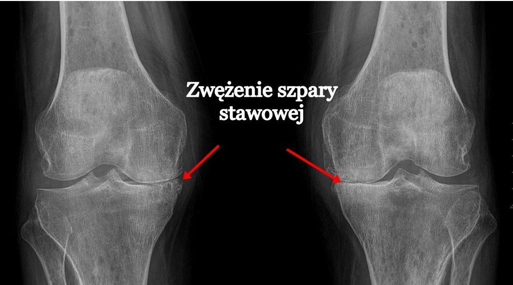 Zwyrodnienie kolana (stawu kolanowego) – objawy, przyczyny, operacja, rehabilitacja