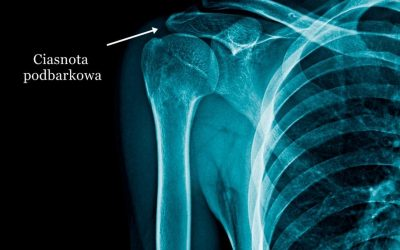 Zespół ciasnoty podbarkowej (cieśń podbarkowa) – objawy, przyczyny, leczenie, rehabilitacja