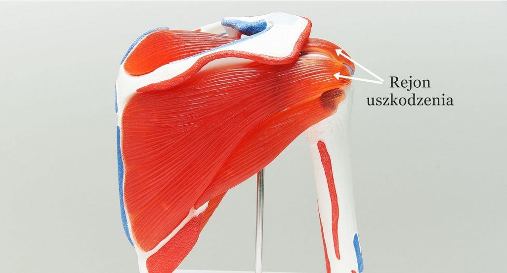 Uszkodzenie stożka rotatorów (zapalenie) – objawy, leczenie, rehabilitacja