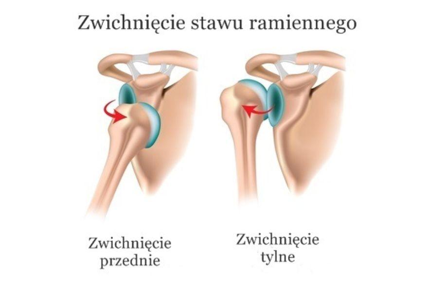 Zwichnięcie barku (stawu ramiennego) – objawy, leczenie, operacja, rehabilitacja