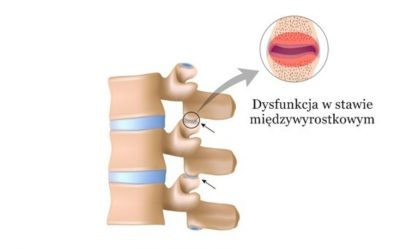 Zablokowany kręgosłup (szyjny, piersiowy, lędźwiowy) – objawy, leczenie, rehabilitacja