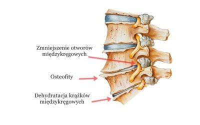 Zwyrodnienie kręgosłupa (szyjnego, piersiowego, lędźwiowego) – objawy, leczenie, rehabilitacja