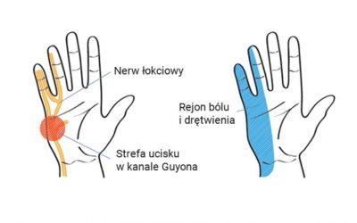 Zespół kanału Guyona – objawy, leczenie, operacja, rehabilitacja