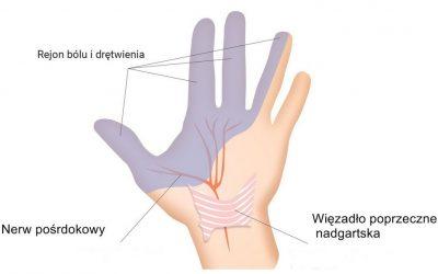 Zespół cieśni nadgarstka (cieśń nadgarstka) – objawy, leczenie, operacja, rehabilitacja