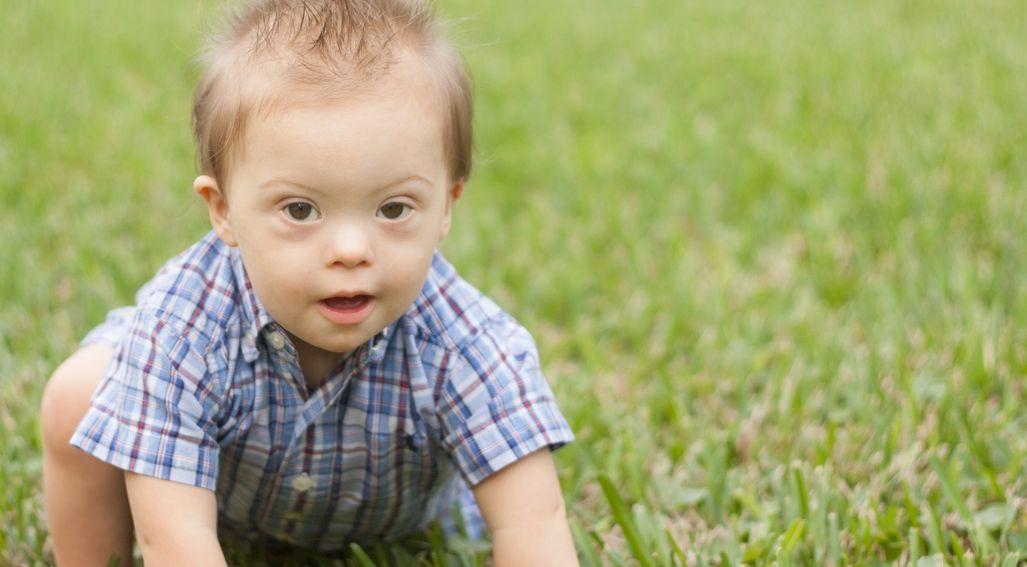 Zespół Downa u dzieci – objawy, przyczyny, leczenie