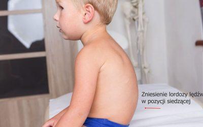 Zniesienie lordozy lędźwiowej u dzieci – objawy, przyczyny, leczenie, rehabilitacja