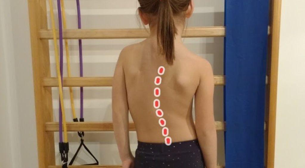 Boczne skrzywienie kręgosłupa u dzieci (Skolioza) – objawy, przyczyny, fizjoterapia, operacja