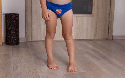 Dziecko stawia stopę (nóżki) do środka – przyczyny, leczenie, rehabilitacja