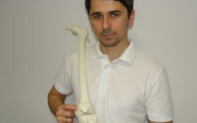 Ból z przodu kolana (boczne przyparcie rzepki, ból rzepki) – leczenie, rehabilitacja