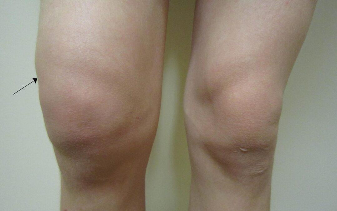 Obrzęk kolana (opuchlizna kolana, woda w kolanie) – przyczyny i leczenie