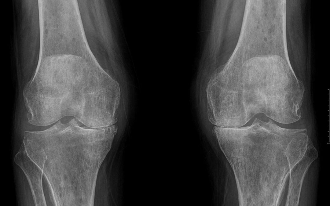 Ból kolana – jakie badania? Rtg, Rezonans (MR), Usg, Artroskopia
