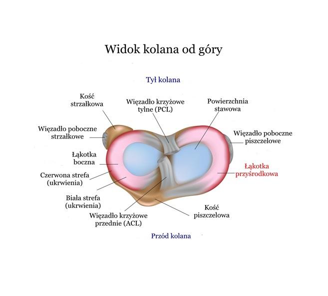 Uszkodzenie (Uraz, Pęknięcie) Łąkotki przyśrodkowej – Objawy, Operacja, Leczenie, Rehabilitacja